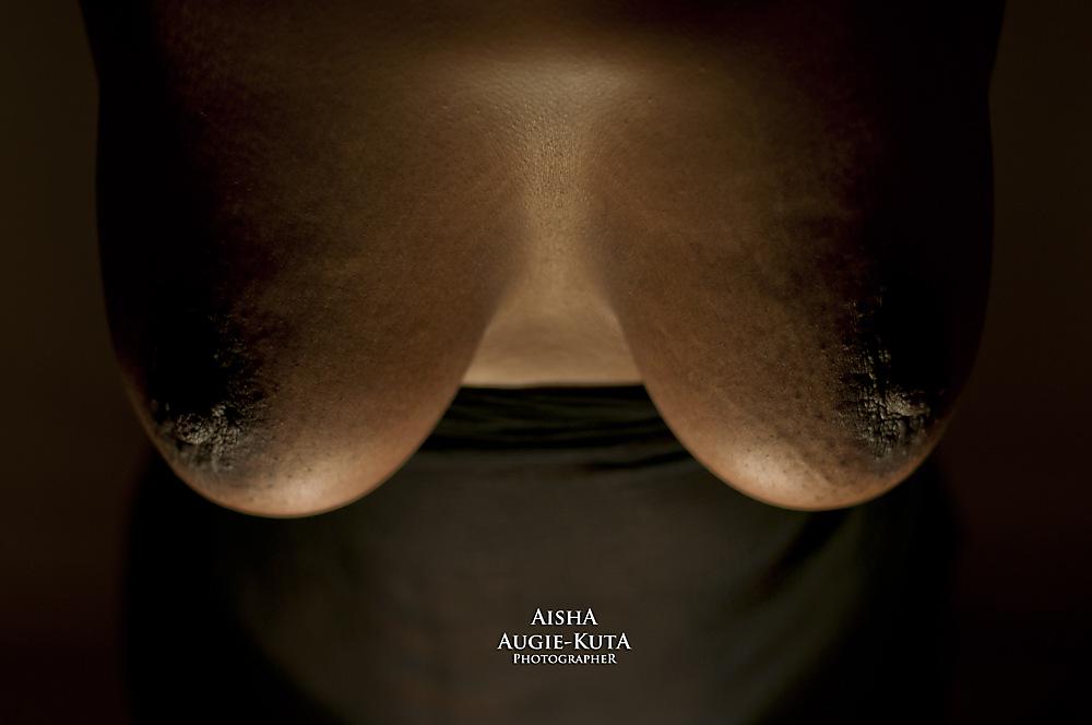 photoblog image World Cancer Day: Breast Cancer